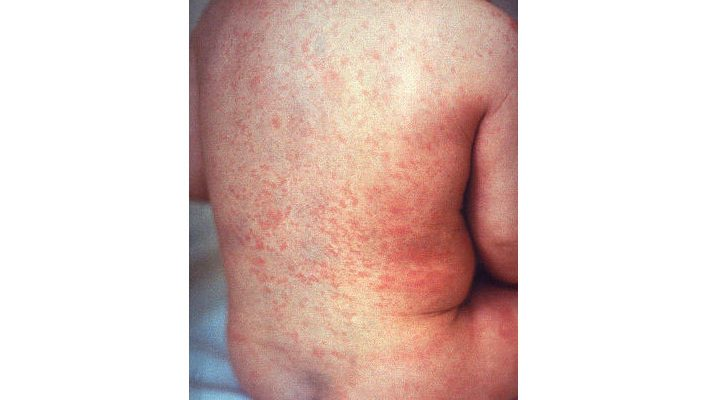 rubella. (Courtesy of Centers for Disease Control and Prevention)