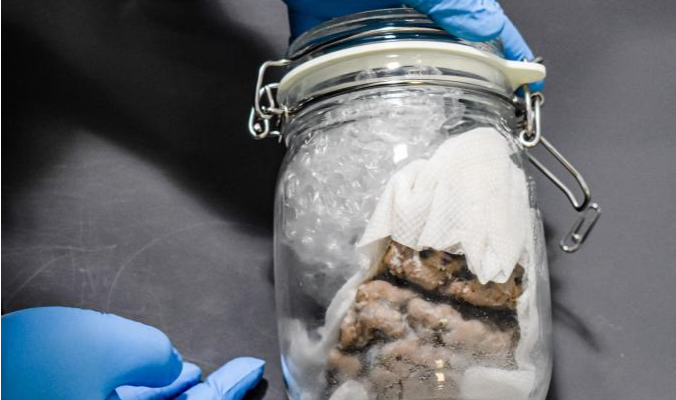 CBP finds human brain in jar in MI